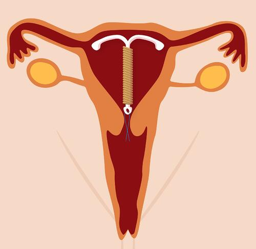 Apicha CHC Women's Health
